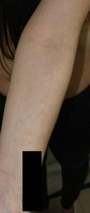 Hyperchromic macular rash on the forearm of the patient's mother.