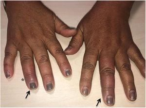 Purplish erythema on the 3rd finger of the left hand and distal portion of the 4th finger of the right hand (arrows), with mild associated oedema. On the side of the 4th finger of the right hand, the entry point (asterisk) can be seen.