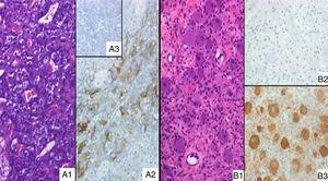 (A1) Adrenal medulla of the present case, without morphological abnormalities (H&E, ×20); (A2) positive ACTH immunostain of the same histological area as A1; (A3) absolute negative ACTH stain in an adrenal control case. (B1) Extra-adrenal ganglioneuroma (H&E, ×20); (B2) ACTH immunostain, absolutely negative; (B3) NSE positive expression in neuronal component, according to the diagnosis.