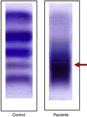 Isoformas de lactato deshidrogenasa (LDH) identificadas mediante electroforesis sobre agarosa en suero de la paciente y control.