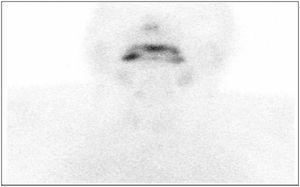 Se observa un incremento de la captación de fondo vascular con práctica ausencia de actividad por parte de la glándula tiroides. Exploración gammagráfica compatible con tiroiditis aguda.