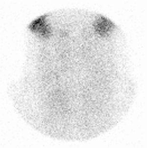 99mTc-pertechnetate scintigraphy. Absent 99mTc-pertechnetate uptake during thyroid scintigraphy performed in day+12 after onset of thyroiditis symptoms.