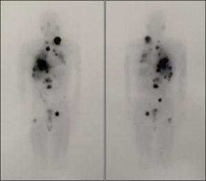 Whole body scan after treatment with 100mCi of 131I-MIBG. The image shows disease progression with lesions with high affinity for the radiotracer that correspond to a left laterocervical adenopathic conglomerate, mediastinal adenopathies, and lung, liver, and bone metastases (L2 and proximal third of right femur).
