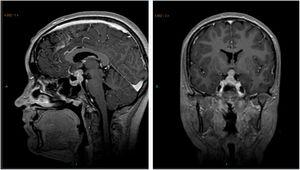 Magnetic resonance imaging view of a 15-year-old girl with a supra- and intrasellar tumor; three years before she had been diagnosed with isolated central diabetes insipidus and a widening of the pituitary stalk. The biopsy showed this to be a non-secreting germ cell tumor.