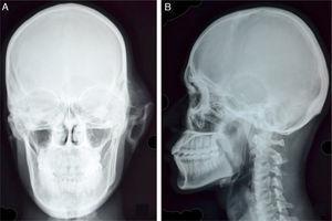 A, Vista PA do crânio revela edema de origem óssea sobreposta ao osso temporal esquerdo, com córtex desgastado e entrelaçamento de septos. Há uma fenda associada no córtex da asa esquerda maior do esfenoide e o osso petroso esquerdo não é visualizado. Observa‐se a presença de inflamação dos tecidos moles e o deslocamento lateral do pavilhão auricular esquerdo. B, Lesão lítica, no osso temporal com uma zona de transição estreita e as bordas irregulares, esclerosadas, são bem observadas na vista lateral.