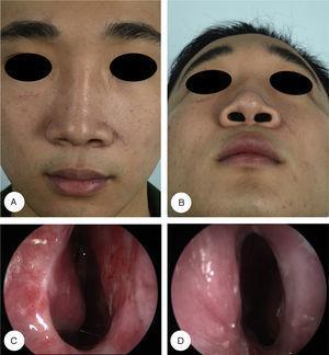 Perfis pós‐operatórios e achados endoscópicos. Vistas frontal (A) e basal (B) mostram excelente resultado estético. A endoscopia nasal no pós‐operatório de seis meses mostra que os vestíbulos nasais direito (C) e esquerdo (D) estão patentes, sem evidências de reestenose.
