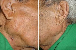 Imagens obtidas após o término do tratamento (10 meses). O inchaço na glândula parótida diminuiu em ambos os lados e a lesão ulcerativa do lado direito foi curada.