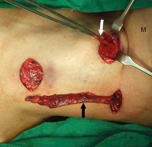 Achado no intraoperatório mostra segunda fístula de fenda branquial esquerda (seta preta) dissecada por incisões em degrau e cisto do ducto tireoglosso (seta branca) com osso hioide anexo. M, mandíbula.