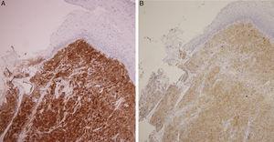 (A) Imunocoloração positiva para S‐100. (B) Coloração imuno‐histoquímica positiva para enolase neurônio‐específica denota sua origem neuroectodérmica.