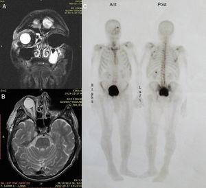 Estudo de IRM: órbita esquerda em seguida à exenteração sem reforço por contraste, fluido mucoso no seio maxilar esquerdo&#59; projeções frontal e de topo (A e B). Cintilografia óssea com várias intensificações na órbita esquerda e no esqueleto ósseo, decorrentes das alterações metabólicas e pós‐operatórias (C).