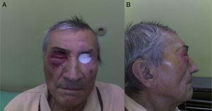 Paciente dois anos após a exenteração da órbita esquerda e da radioterapia. O segundo tumor infiltra a pele periorbital e as pálpebras no lado direito&#59; vistas frontal e lateral (A e B).