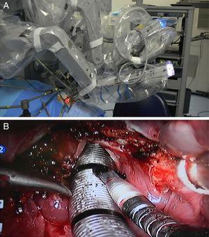 Intraoperatório. (A), Posicionamento dos braços robóticos e óptica&#59; (B) Aspecto da ferida operatória após a laringectomia supraglótica.