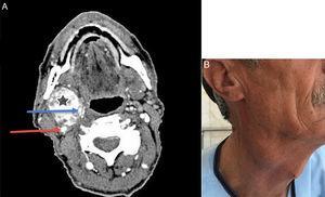 (A) A TC espiral do pescoço com contraste IV revela TCC (estrela), ACI (seta vermelha) e ACE (seta azul). (B) Homem, 60 anos, com lesão cervical direita indolor e não pulsátil presente havia 40 anos.