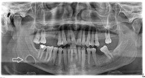 Radiografia panorâmica. Lesão cística de forma oval, bem delimitada (seta branca) entre o segundo molar e o ângulo mandibular, ligeiramente acima da linha mandibular inferior.