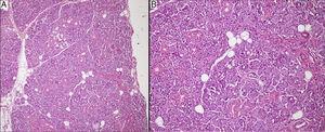 A, Na coloração de hematoxilina‐eosina, a massa consistia exclusivamente de tecido glandular seroso (100×)&#59; B, As células acinares continham grânulos de zimogênio e o sistema ductal estava intacto (200×).
