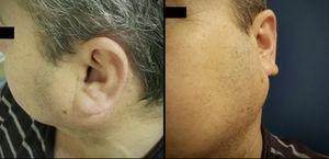 Paciente de 61 anos com tumor na parótida esquerda, na admissão ao hospital.