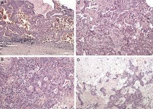 Histopatologia do espécime ressecado (A) mostra tumor de Warthin composto por células linfoides e epiteliais, (B, C) células epiteliais malignas de carcinoma ex‐adenoma pleomorfo, (D) adenoma pleomorfo ao fundo.