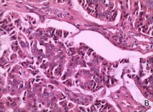 Núcleos vesiculares, citoplasma eosinofílico e fragmentos de alta densidade podem ser observados em algumas células (coloração hematoxilina‐eosina, ampliação de 200×).