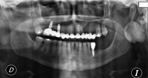 Vista da radiografia panorâmica que mostra uma lesão radiopaca localizada no centro do ramo ascendente da mandíbula esquerda.
