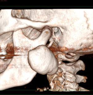 Imagem tridimensional que mostra uma lesão perfeitamente delimitada de aparência exofítica benigna na camada cortical externa do ramo ascendente da mandíbula.