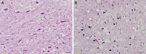 Exame histomorfológico com coloração H&E (40x)&#59; (A) Grupo Controle: integridade tecidual, a aparência geral de células é natural, sem mudanças no tamanho do neurônio. (B) Grupo RF‐EMF: há degeneração de neurônios no núcleo coclear ventral, degradação (setas pretas), além de alguma diminuição no tamanho de neurônios, células picnóticas encolhidas (cabeças de setas brancas). Aumento do número de células gliais (setas brancas) e áreas com aumento da vascularização (setas pretas). Vacuolização intensa no tecido (setas pretas finas) e áreas edematosas.