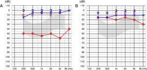 A, Avaliação audiométrica pré‐operatória mostra perda auditiva condutiva de 54dB. B, Avaliação pós‐operatória mostra redução de gap aéreo‐ósseo.