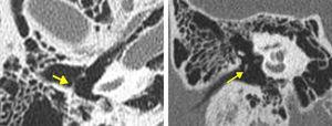 Fixação congênita do martelo (setas) nos cortes axial (direita) e coronal (esquerda) da TC do osso temporal.