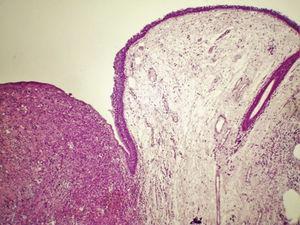 Sarcoma pleomórfico indiferenciado de alto grau com origem na laringe: sarcoma pleomórfico de alto grau que afeta a lâmina própria, circunda a área de edema, hematoxilina‐eosina, 40×.