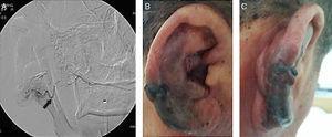 Embolização terapêutica pré‐operatória com angiografia cerebral transfemoral e achados macroscópicos na orelha três dias após a embolização: (A) Angiografia cerebral transfemoral revelou vasos tortuosos grandes e inúmeros vasos pequenos. O principal vaso de alimentação da malformação arteriovenosa originou‐se da artéria auricular posterior (seta preta) e foi completamente ocluído com cola&#59; (B) e (C) Após embolização, o sangramento parou, mas a necrose isquêmica da pele evoluiu.