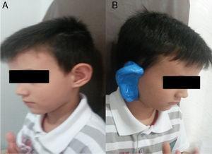 (A) Paciente com deformidade auricular tipo V de Tanzer. (B) Pré‐moldagem feita na orelha direita do paciente.