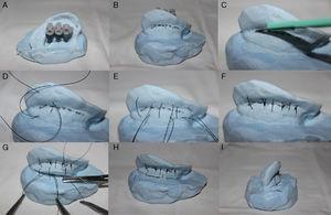 Otoplastia feita no molde com um revestimento interno de rayon. Marcação na anti‐hélice com agulhas (A). Extensão da marcação na anti‐hélice com marcador permanente (B). Incisão não transfixante na região posterior da anti‐hélice (C). Sutura em U da região posterior da anti‐hélice com fio 4,0 Prolene (D e E). Anti‐hélice estabelecida sem romper a resina ou o rayon (F). Incisão na região posterior da concha com um bisturi número 15 e sutura não transfixante na região do mastoide (G). Vista posterior (H) e vista superior (I) do molde no fim do procedimento de otoplastia.