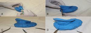 (A) Raspagem da região posterior da anti‐hélice com lâmina de bisturi número 15. (B) e (C) sutura em U na região posterior da anti‐hélice. (D) Sutura da região posterior da concha na área da mastoide.