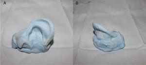 Aplicação externa de rayon no molde auricular para aumentar a resistência.