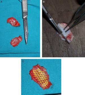 (A) Imagens de cartilagens destacadas do ponto original. (B) Remodelação da cartilagem para obter a anatomia correta. (C) Esquema de linhas de fragilização.