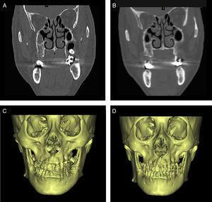 Imagens de TC e reconstrução em 3D do método de remoção óssea. A e C, pré‐operatório&#59; B e D, imagens pós‐operatórias mostram formato normal.