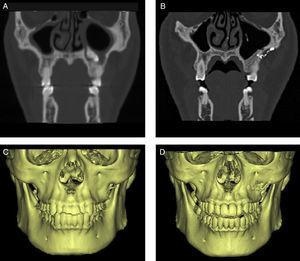Imagens de TC e reconstrução em 3D do método de reimplante da parede óssea. A e C, pré‐operatório&#59; B e D, imagens pós‐operatórias mostram a forma normal e sem reabsorção óssea.