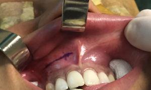 Marcação da incisão no fundo de sulco gengivolabial superior.