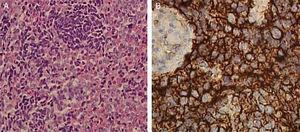 (A) A lesão consistia em lâminas difusas de pequenas células redondas azuis com citoplasma escasso e nucléolos discretos (hematoxilina‐eosina, ampliação original×20); (B) A imuno‐histoquímica para CD99 demonstrou coloração membranosa difusa de células tumorais (×40).