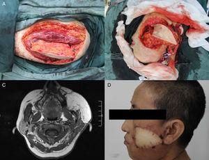 (A) O retalho ALT foi colhido da coxa esquerda&#59; (B) Defeito com passagem de um lado a outro na face esquerda após a excisão do carcinoma de células escamosas bucais&#59; (C) RM axial pós‐operatória mostra o retalho ALT&#59; (D) Resultado pós‐operatório quatro meses após a cirurgia.