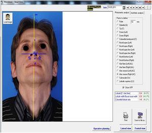 Análise facial basal pós‐operatória (sexto mês).