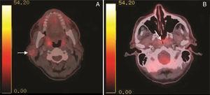 PET‐TC com injeção intravenosa de Flúor‐18 Fluordeoxiglicose (FDG‐18F). A, seta branca ‐ realce da tumor na glândula parótida direita. B, seta branca, realce nasofaríngeo.