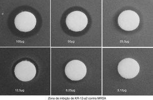 O teste de zona de inibição de crescimento demonstrou o efeito antibacteriano contra MRSA. O tamanho da zona de inibição foi dose‐dependente.
