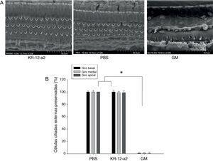 (A) Achados de microscopia eletrônica de varredura mostraram células ciliadas bem preservadas no grupo KR‐12‐a2&#59; contudo, perda total de células ciliadas foi observada no grupo GM. (B) Não há diferenças entre os grupos PBS e KR‐12‐a2, exceto em relação aos resultados da gentamicina.