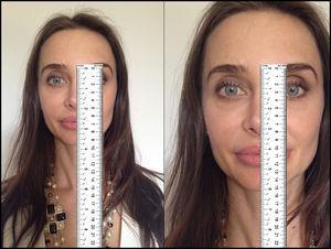 Exemplo do grande problema do uso de medidas absolutas em fotogrametria. Mesma paciente, portanto o mesmo nariz, mas fotos em diferentes tamanhos, criam a ilusão de o nariz na foto da direita ser mais longo. Esse problema pode ser eliminado com razões e ângulos entre as medidas primárias. Modelo: Fabiana Maros.