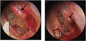 Processo de cicatrização da perfuração após colocação de esponja de Gelfoam: (A) 3 dias após tratamento com; (B) 4 dias após tratamento. Setas pretas indicam tecido de granulação, edema e exsudato na margem.