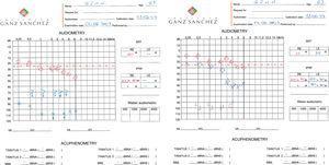 Primeira audiometria do paciente (esquerda) após a percepção da perda auditiva súbita e zumbido (maio de 2007) e segunda audiometria (direita) após o tratamento, com melhora parcial da perda auditiva e zumbido (junho de 2007).