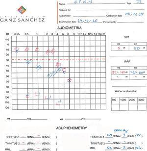 Terceira audiometria do paciente após um intervalo de nove anos (abril de 2016) apresenta perda auditiva estável e zumbido de baixa intensidade.