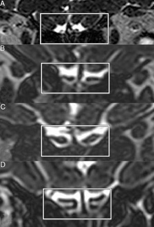 Imagens coronais de Space (aperfeiçoamento da amostragem pela aplicação aprimorada de contrastes com uma evolução diferente de ângulo invertido) de STIR (do inglês short tau inversion recovery = recuperação da inversão de tau curto) em T2 mostram bulbos olfatórios de anosmia (A), hiposmia (B), normosmia (C) e controle (D).
