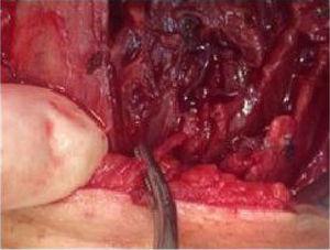 Corpo estranho adjacente à traqueia, posicionado a 2mm da trajetória usual do nervo laríngeo recorrente ipsilateral.