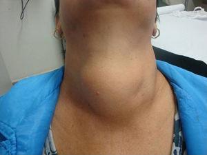 Grande bócio em paciente com rouquidão e dificuldade respiratória.